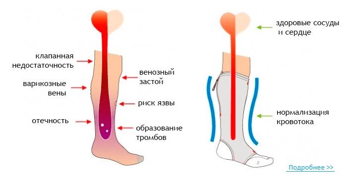 Носки антиварикозные
